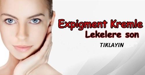 expigment 4 krem kullananlar
