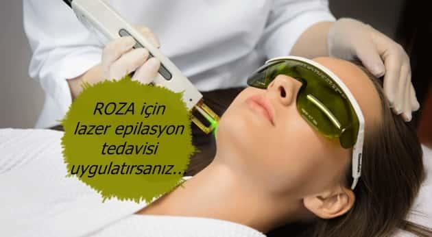 Rozasea lazer tedavisi